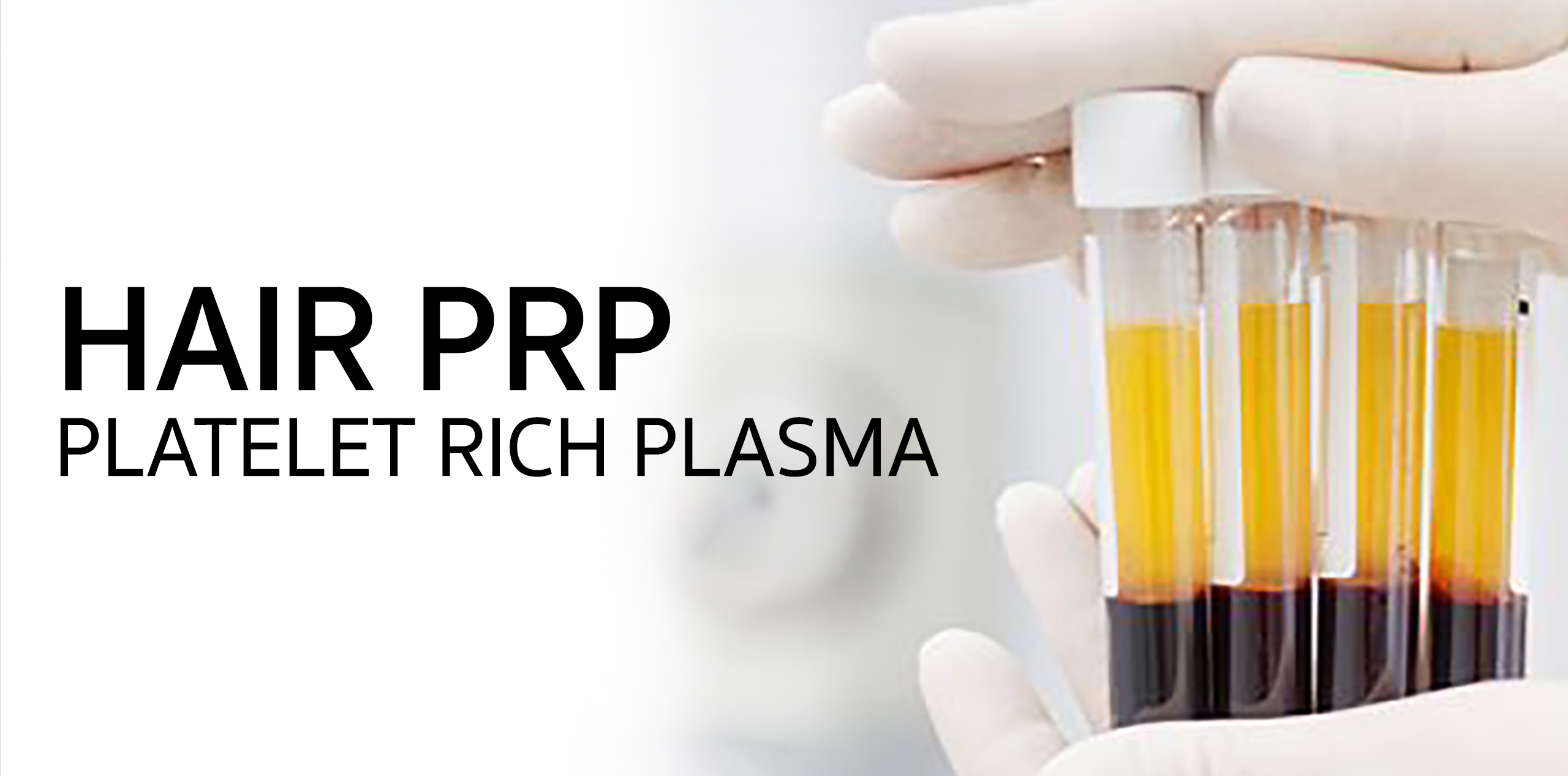 Hair Treatment: PRP (Platelet Rich Plasma)