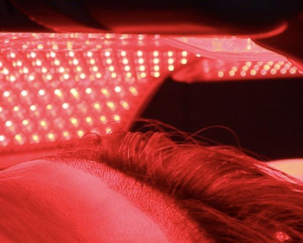 Q&A: LLLT นวัตกรรมแสงเลเซอร์ความเข้มข้นต่ำสำหรับคนผมร่วง ผมบางจากพันธุกรรม