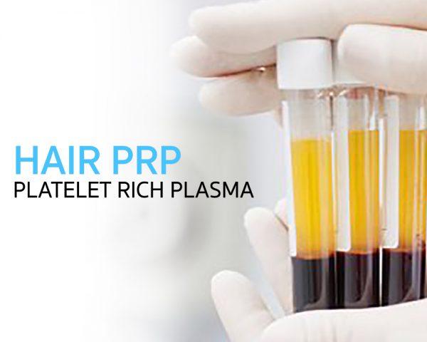 Hair Treatment: PRP (Platelet Rich Plasma)